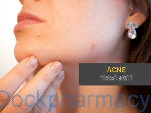 acne solution treatment