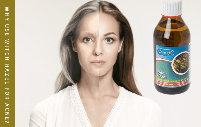 7 Reasons Why Use Witch Hazel for Acne? Acne is dreaded by several and also they will certainly go to any size to get rid of it. There are numerous remedies for acne and witch hazel is one of the best natural herbs you can make use of for efficient acne outcomes. The plant has […]