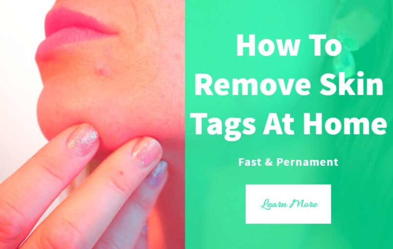 Top 12 Methods For Skin Tag Removal At Home Skin tags removal at home can be easy, safe and fast. Here are the top 12 methods on how to remove skin tags at home. What Are Skin Tags Skin tags are common growths that look like tiny, soft balloons of hanging flesh. While unsightly, they […]