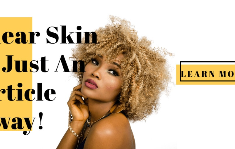 Clear Skin Is Just An Article Away! Healthy skin involves more than having a pretty face. Your whole body relies on healthy organs, including your skin. This article will help you beautify and improve the health of your skin. Clear Skin Routine To keep your skin looking young and healthy, it is important to carefully […]